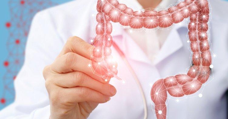 Crohn hastalığı belirtileri nelerdir? Tedavisi nasıl yapılır?