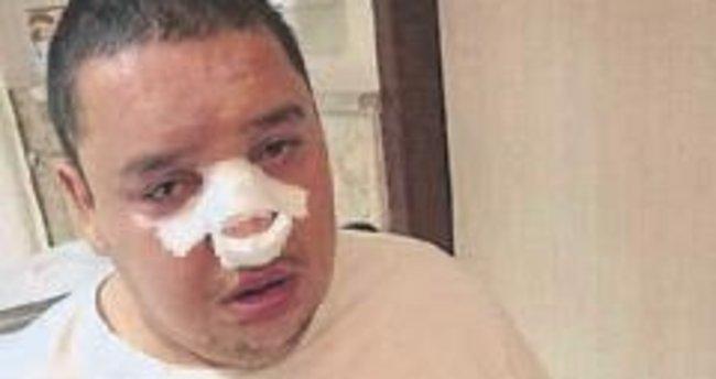 Engellinin burnunu kırdılar