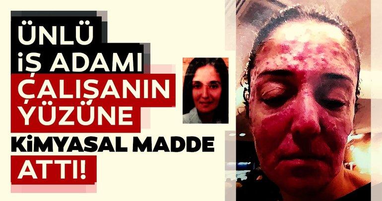 Son dakika haberi: Ünlü iş adamı çalışanının yüzüne kimyasal madde attı