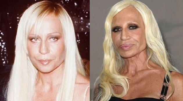 Daha güzel olma arzusuyla estetik kurbanı olan ünlü yüzler!