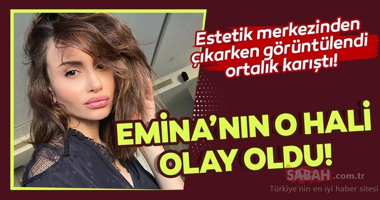 Emina Jahovic estetik merkezinden çıkarken görüntülendi ortalık karıştı! Emina Jahovic estetiği abartınca...