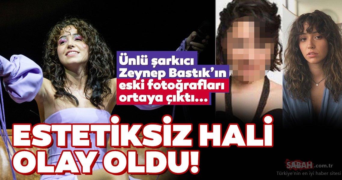 Herkes ünlü şarkıcı Zeynep Bastık'ın eski halini konuşuyor ...
