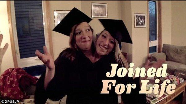 Fazla yaşamaz dediler, üniversiteden mezun oldular!