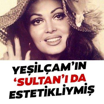Yeşilçam'ın Sultan'ı Türkan Şoray'ın estetiksiz hali şoke etti! Bu fotoğraf yıllar sonra ortaya çıktı
