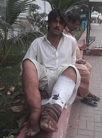 Bir sabah uyandığında bacağını böyle buldu!