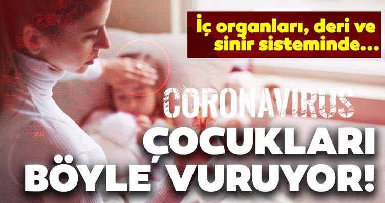 Çocuklarda corona virüse bağlı hastalık! İç organları, deri ve sinir sisteminde...