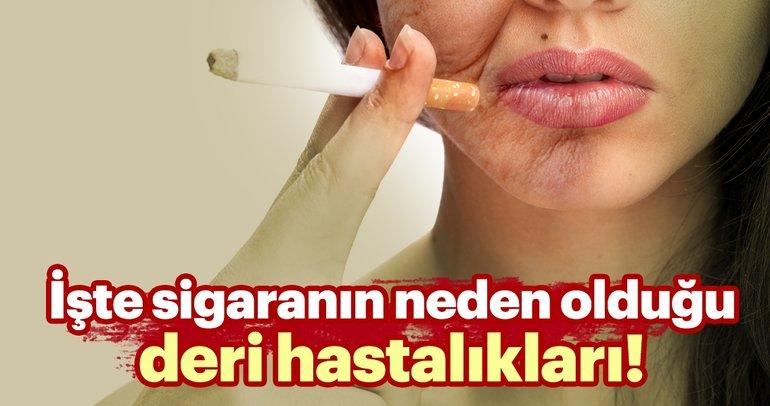 Sigaranın neden olduğu deri hastalıkları