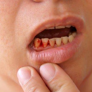 Bu besin diş eti hastalıklarına doğal çözüm! Çam kozalağı suyunun bilinmeyen faydaları şaşırtıyor!