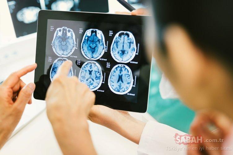 Bu belirtilere dikkat! Beyin tümörünün habercisi olduğu ortaya çıktı