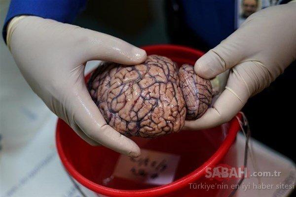 İşte karşınızda beyin bankası!