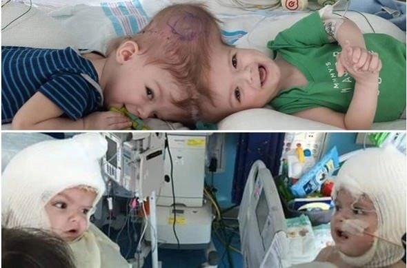 Kafalarından yapışık olan ikizler ilk kez birbirini gördü!