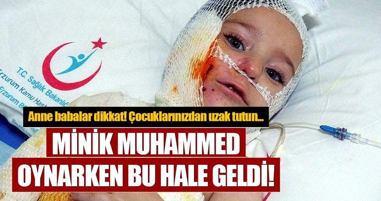 Kibrit ile oynayan minik Muhammed ölümden döndü...