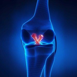 Çapraz bağ kopması belirtileri nedir ve nasıl anlaşılır? Ön çapraz bağ ameliyatı sonrası iyileşme süreci nasıl olur?