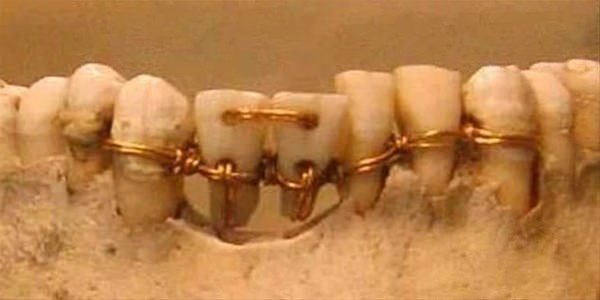 Kết quả hình ảnh cho medicina no egito antigo