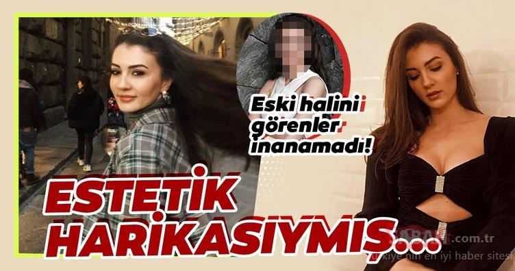 Afilli Aşk'ın Ayşe'si Burcu Özberk estetik harikası çıktı! Afilli Aşk'ın güzel oyuncusu Burcu Özberk eski hali ile çok şaşırttı...