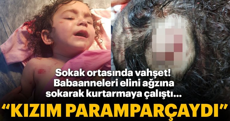 Son dakika: Rottweiler cinsi köpek saldırdığı minik Almira'yı parçaladı