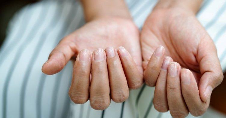 Uzmanından tırnaklardaki renk ve şekil değişikliği hastalıkların habercisi olabilir uyarısı
