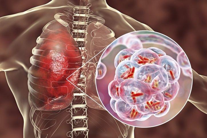 Uzmanlarda flaş corona araştırması! Corona virüsü belirtileri gün gün bu semptomları gösteriyor!