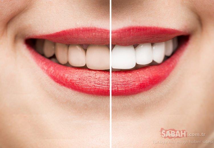 Dişleri beyazlatmak için 4 pratik yöntem!