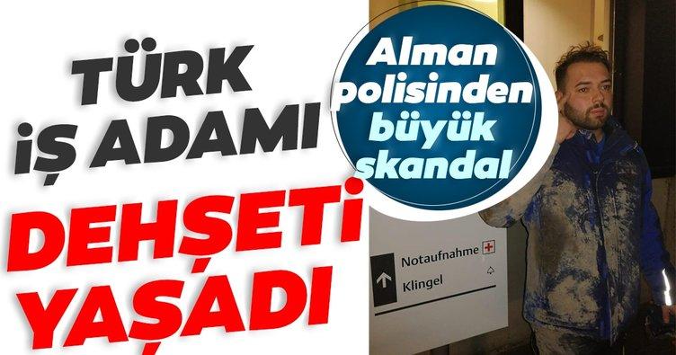 SON DAKİKA: Almanya'da polis şiddeti! Türk iş adamı dehşeti yaşadı