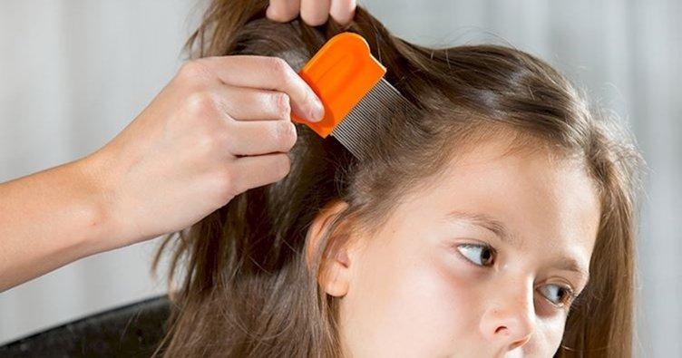 Bit nasıl oluşur? Saç biti nasıl oluşur, uzun saçtan bit nasıl yok edilir?