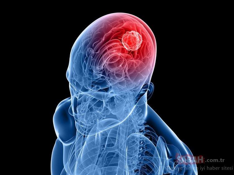 Bu belirtilere dikkat! Beyin tümörünün habercisi