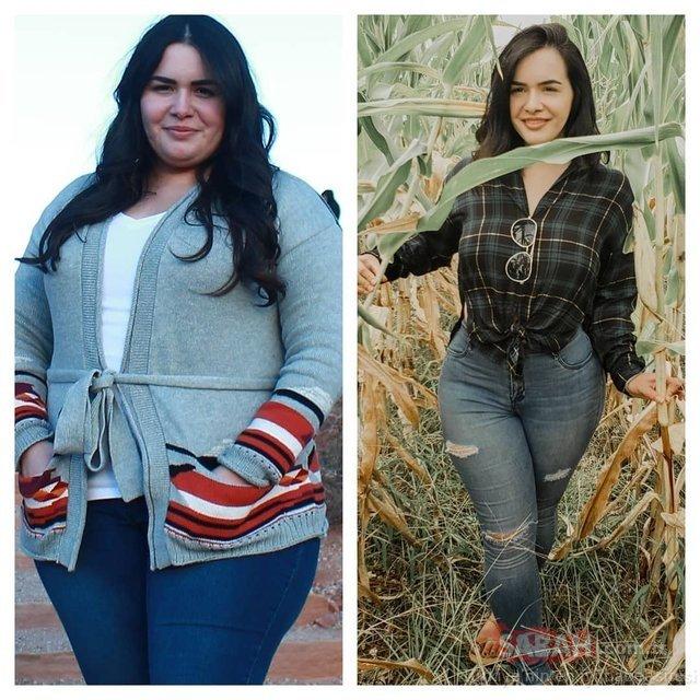 Sağlıksız beslendi 111 kiloya çıktı! Değişimi dudak uçuklattı