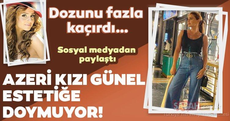 Azeri kızı Günel estetiğe doymuyor!