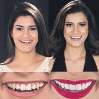 Her problemli diş ağrı yapmayabilir