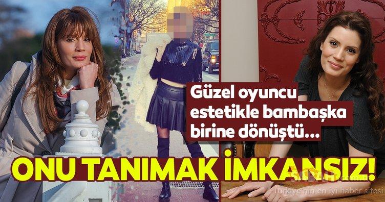 Korona şarkısı ile beğeni toplayan Ayça Varlıer de estetikli çıktı! İşte Ayça Varlıer'in değişimi...