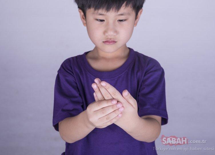 Çocuklarda da romatizma olur
