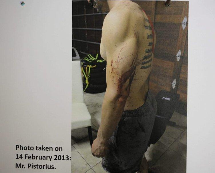 Oscar Pistorius'un kan gölüne dönen evi