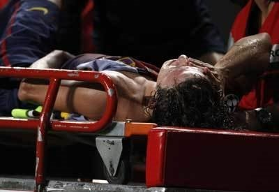 Barça'nın efsanesinin kolu kırıldı