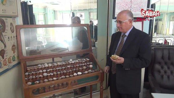 Hataylı doktorun görenleri şaşkına çeviren koleksiyonu...  Kimisi 22 santim, kimisi 650 gram | Video