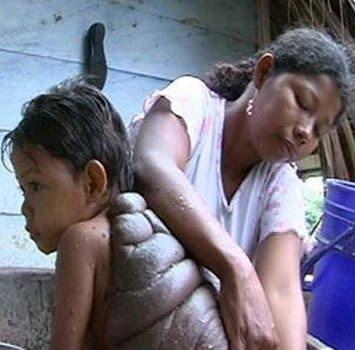 Kaplumbağa sırtlı çocuk
