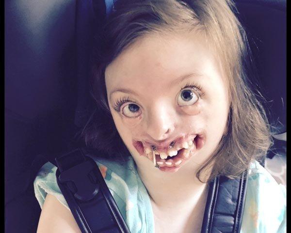 Bir annenin zaferi! Rett sendromlu kızı için verdiği savaşı kazandı