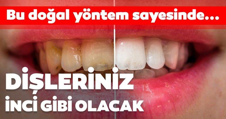 Bu yöntem sayesinde dişleriniz inci gibi olacak! İşte dişleri beyazlatmanın doğal yolları