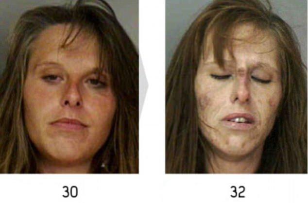 Uyuşturucunun yok ettiği bedenler