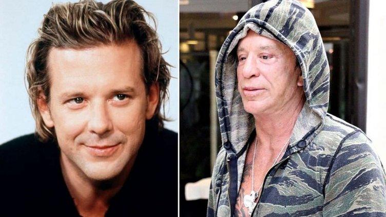 Ünlü aktör Mickey Rourke estetik operasyonların kurbanı oldu