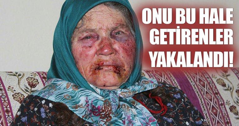 Yaşlı kadını dövüp gasp eden caniler yakalandı