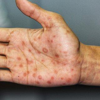 Frengi hastalığı nedir, belirtileri nelerdir? Nasıl anlaşılır?