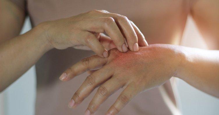 Dikkat! Alerjik hastalıkların habercisi olabilir