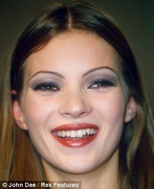 Kate Moss'un değişimi