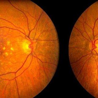 Sarı nokta hastalığı nedir, belirtileri nelerdir? Makula dejenerasyonu genetik mi?