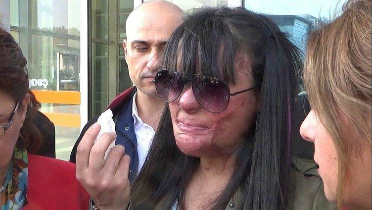 Yüzü yakılan Berfin'den son dakika açıklaması: Pişmanım