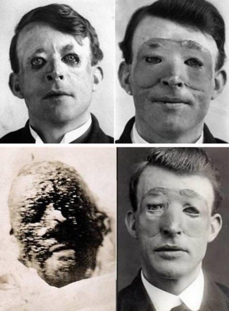 Dünyanın ilk estetik ameliyatları
