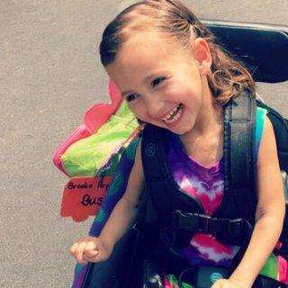 Serebral palsi nedir, belirtileri nelerdir? Serebral palsi (beyin felci) tedavisi nasıl yapılır?