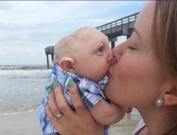 Mucize bebek 1 yaşında
