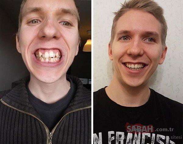 İnanılmaz ama gerçek! Diş teli taktırınca...