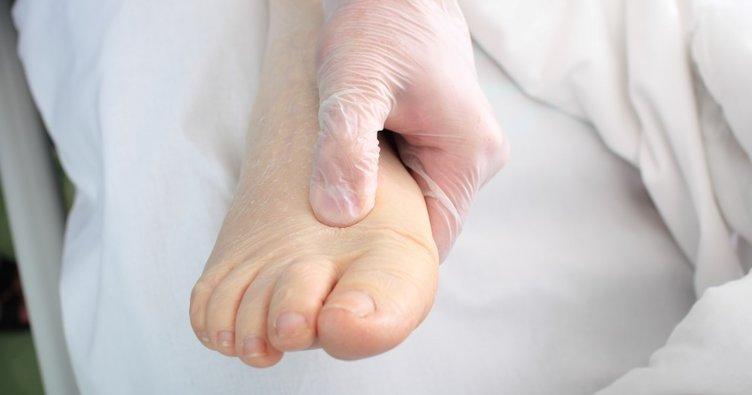 Hamilelikte ayak ve bilek şişmesi (ödem) nasıl önlenir?